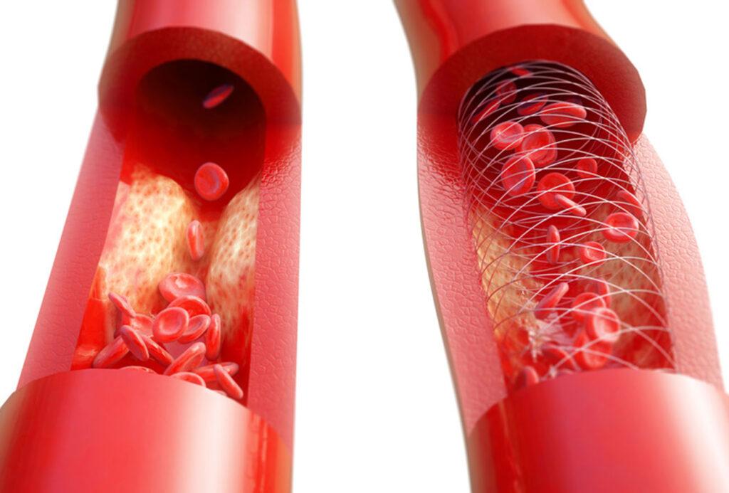 Gefaessverengung Bluthochdruck