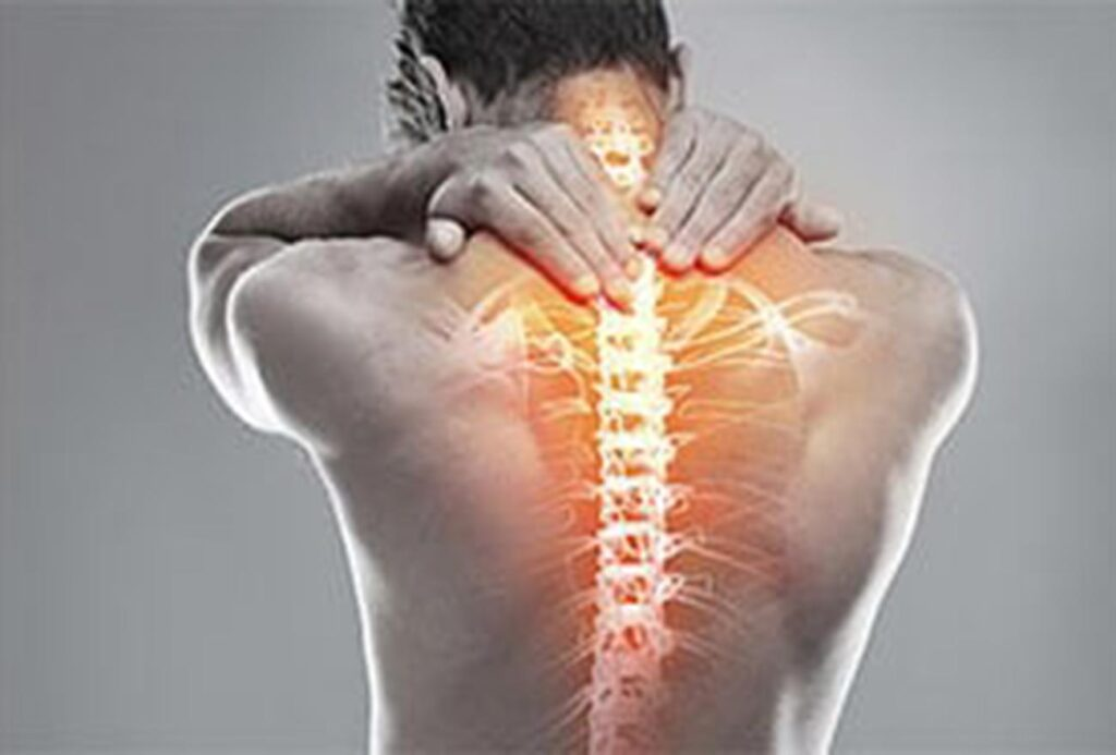 Osteoporose Rücken